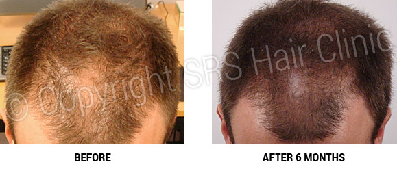 hair-regrowth-18